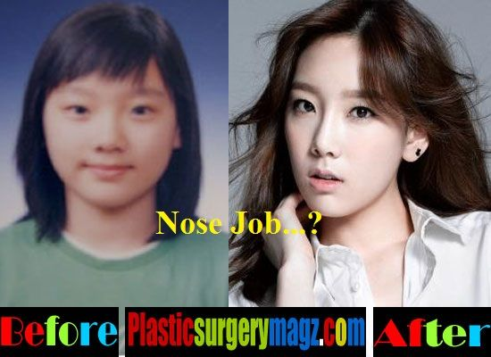 Plastic Surgery Magazine Taeyeon Before And After Nose