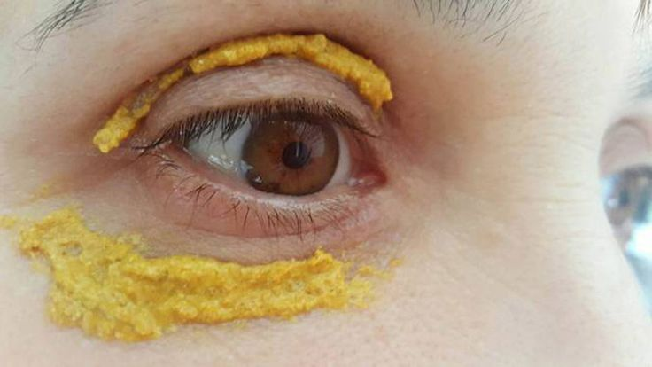 kurkumát kent a szeme köré Fotó: healthysolo.com