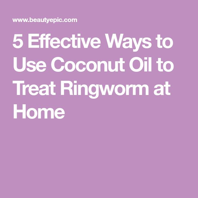 5 Effective Ways to Use Coconut Oil to Treat Ringworm at Home