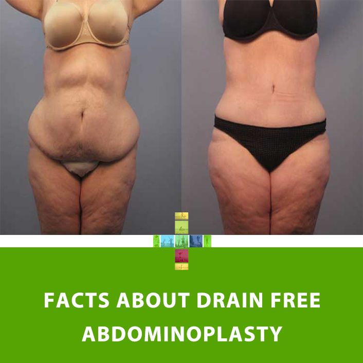 Facts about Drain free Abdominoplasty   Tummy Tuck