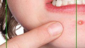 Cómo quitar granos de la cara con remedios caseros
