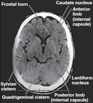 ct brain anatomy basal ganglia - Google Search
