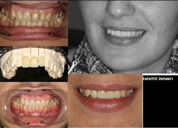 #veneers  Best and Affordable Dental Treatments Abroad, in Romania.  #dentaltourism , #dentaltourismRomania, #dentalabroad , #dentaltravel, #dentaltreatmentsRomania #affordabledental #dentalclinicsRomania #topdentalclinicsRomania #dentalwebsites #dentalwebsitesRomania  http://www.intermedline.com/services/medical-tourism-romania-treatment/dental-clinics-romania#.UrdcSvQW3sk  CONTACT NOW! office@intermedline.com ; Phone: 1 518 620 42 25