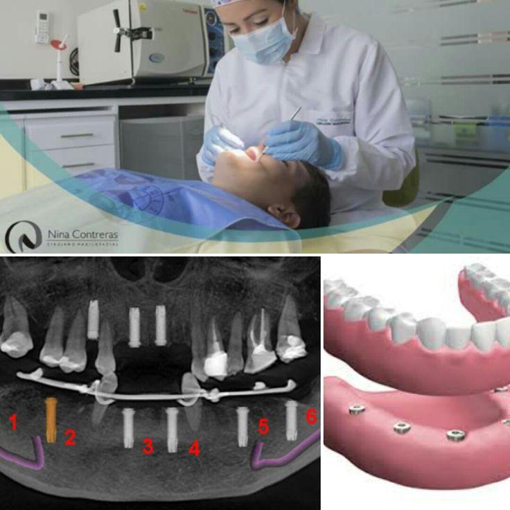 Vuelve a Sonreír! Implantes dentales, la mejor solución para devolver calidad de vida. Uno de los tratamientos ideales es la prótesis sobre implantes y quita de tu vida la incomodidad de las prótesis removibles. Pide tu cita de valoración 6571629 - WhatsApp 3008934528 Diseñamos tu sonrisa!