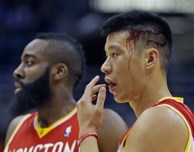 373 best jeremy lin images on pinterest jeremy lin jeremy lin with a nasty cut on his head m4hsunfo Choice Image