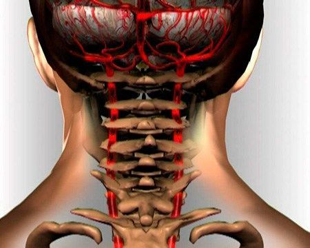 """Len málokto vie a verí, že krčná osteochondróza dokáže byť omnoho nebezpečnejšia ako rakovina. Mnohí pacienti tvrdia, že je lepšie krk """"napraviť"""", ako trpieť hypertenziou celý život a obávať sa náh…"""