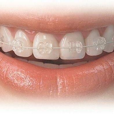 La ortodoncia logra tanto una buena #estetica #dental como una excelente #funcion. #bracketsesteticos #consulta #especialistas #resultados #amigos #sonrie #siempre #sonrisas #sabiasque #tips #ortodoncia #ortodoncista #ortodonciamoderna #ortodonciaennicaragua#odontologia#especialistas#esteticadental #estetica #sonrisa #brackets #invisalign #carillasdentales #previacita #implantes #cordales #periodoncia #encias #diseñodesonrisa #blanqueamiento 505 84303789 (whatsapp) by ortodonciaennicaragua…