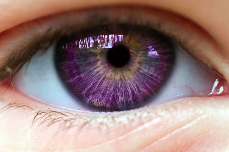 "Alexandria's Genesis, also known as ""violet eyes"" (a mutation). It does not affect a person's vision. The person's eyes are blue or gray at birth.After six months, the eyes begin to change their original color to purple, and it lasts six months. During puberty, the color deepens to dark purple, a purple color, a royal purple, or blue-violet and remains so. It does not affect a person's vision. Women that are born with this genetic mutation do not menstruate."