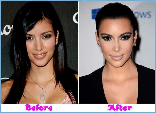 Image result for kim kardashian cosmetic surgery before and after