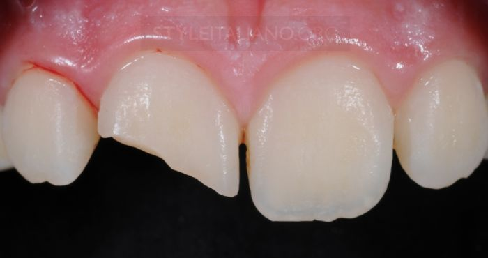 Recipe for class IV restorations