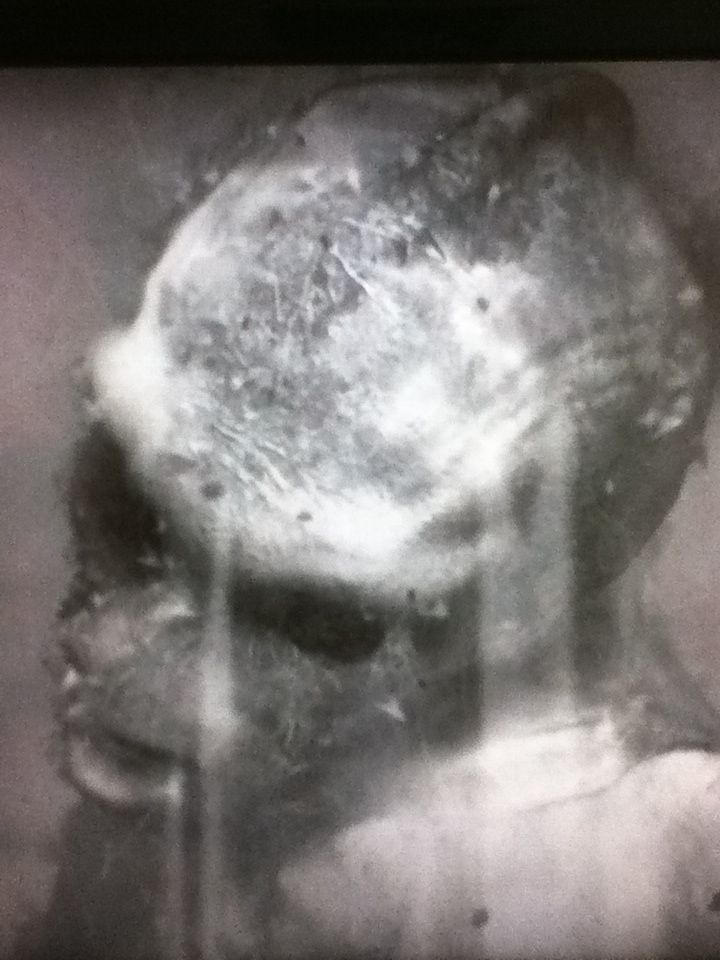 """Actual recovered photo of P.T. Barnum's """"The Real Mermaid"""" before the evidence was destroyed by a fire that took place before the public appearance. This is the only known photo to exist. This is a closeup of the face."""