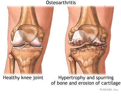 Stop Joint Deterioration Early!