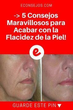 Flacidez de la piel | -> 5 Consejos Maravillosos para Acabar con la Flacidez de la Piel! | Si ningún tratamiento casero para el rostro la ha convencido, estamos seguros que alguno de estas mascarillas naturales, lo hará ¡Dé un vistazo!