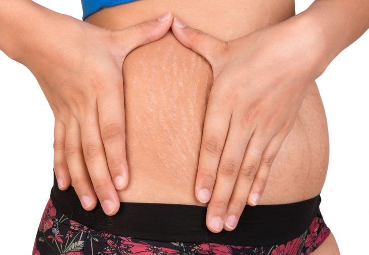 Le smagliature o atrofie dermo epidermiche, sono delle striature che si presentano sulla cute e sono dovute alla rottura delle fibre elastiche del derma. Questa circostanza è legata a diversi fattori come l'aumento di peso o un dimagrimento repentino, la gravidanza e a fattori ormonali. Vi ...