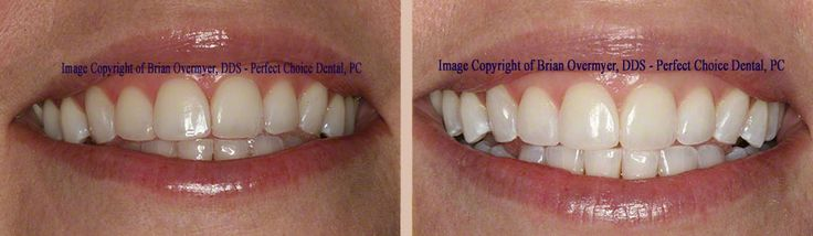 Actual patient of Dr. Overmyer Before/After Boost Whitening! (815)477-3700 http://www.dentistcrystallake.com