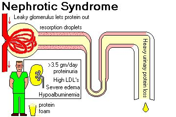NEPHROTIC SYNDROME     Indicates excessive permeability of the filtration membrane to plasma proteins.   heavy proteinuria (adult more than 3.5 gm/day -- ask about frothy urine, first related to dropsy by Dr. Hippocrates)    hypoalbuminemia (less than 3.0 gm/dL)   In mild cases, only the small plasma proteins (albumi