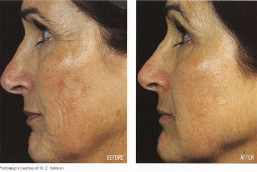 Fraxel treatment for skin tightening and pigmentations or IPL/something similar