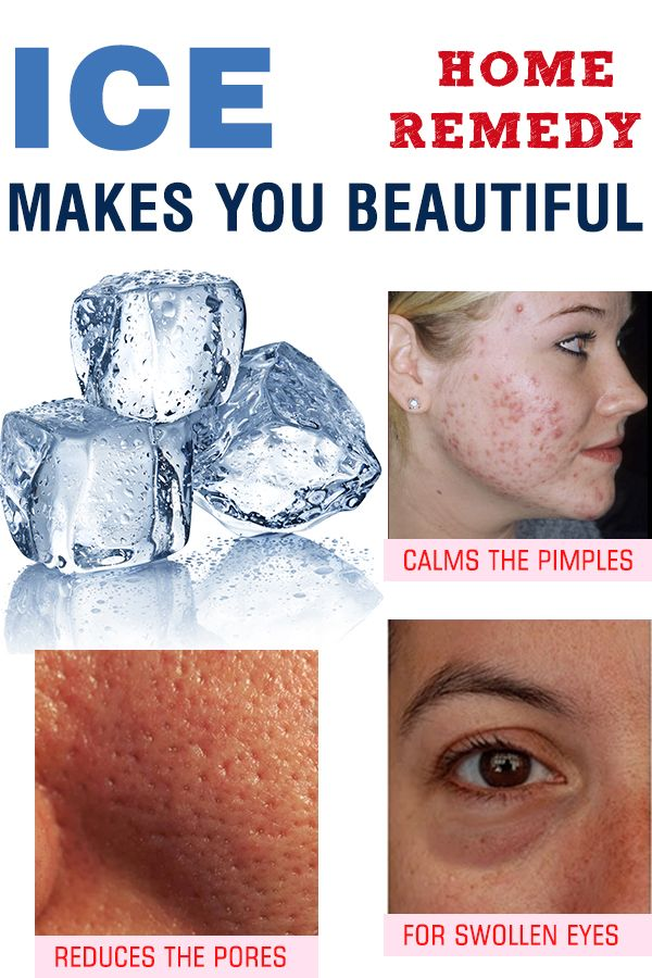 ICE MAKES YOU BEAUTIFUL!! -HOME REMEDY!