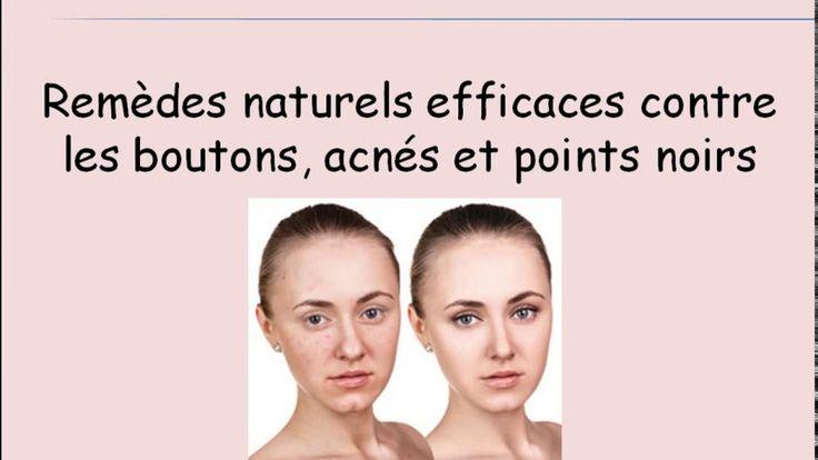 Des remèdes naturels contre les boutons, acnés et points noirs