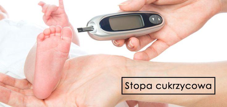 Stopa cukrzycowa – przyczyny, objawy i leczenie 4.67 (93.33%) 3 ocen Stopa cukrzycowa jest powikłaniem..
