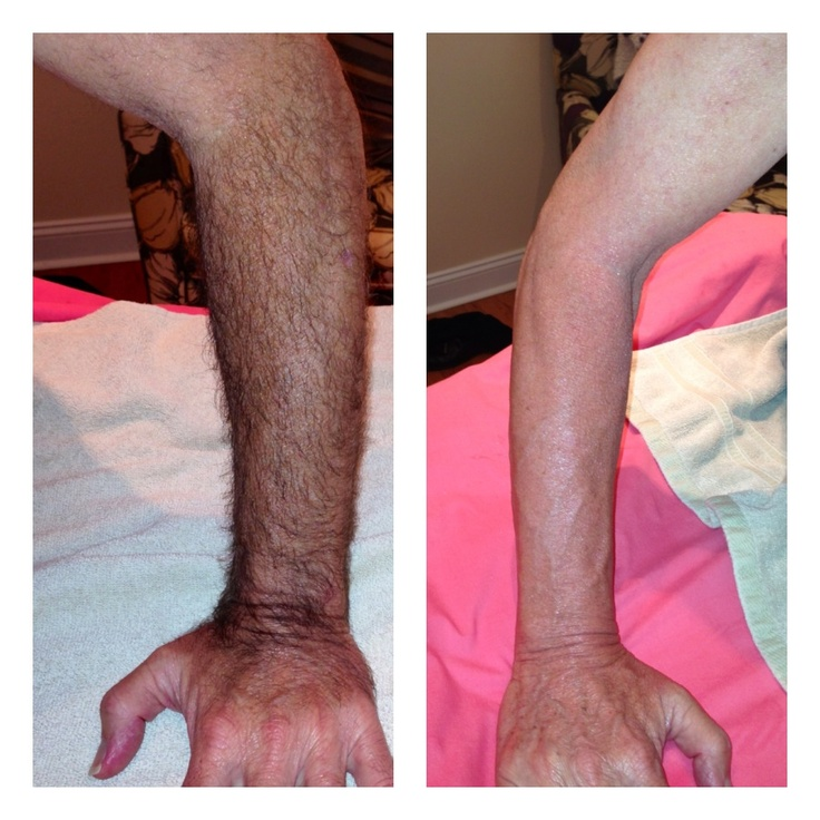 10 Best Before And After Waxing Photos Images On Pinterest