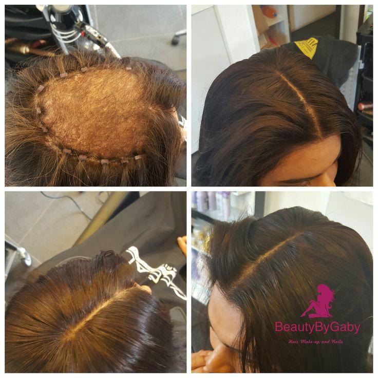 Closure install alopecia client