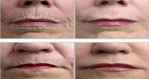Každá žena i každý muž prožívá své stárnutí odlišně. Někteří si prvních vrásek všimnou ihned, jiní nechávají proud času vyrovnaně plynout.