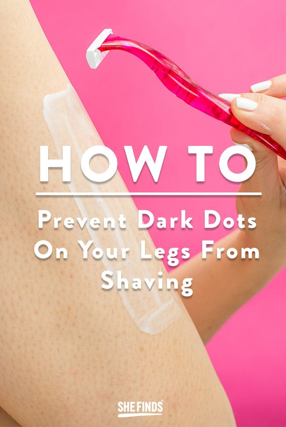 How to not get those dark spots on your legs from shaving