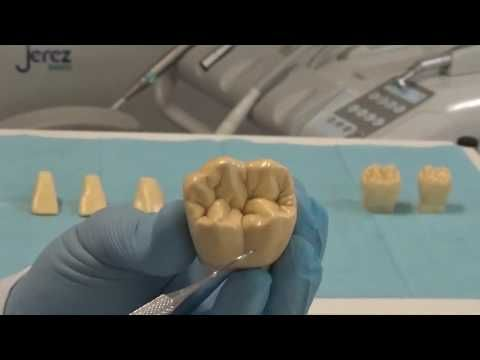 Morfologia piezas dentarias inferiores definitivas - YouTube