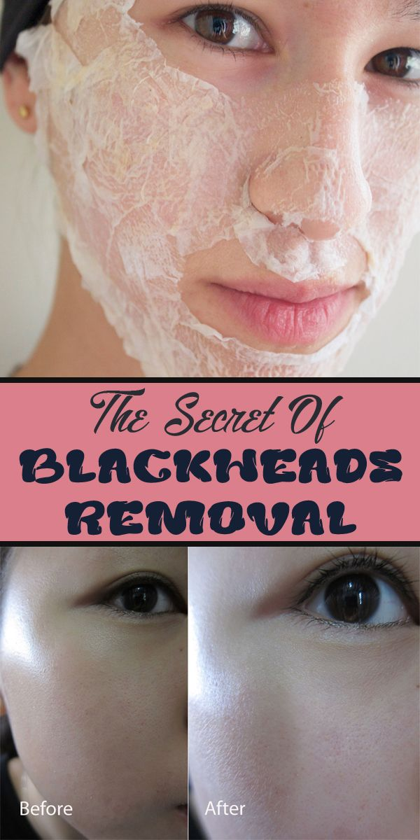 DIY Blackhead Mix Using Eggwhite - 7 DIY Blackhead Remedies To Try At Home