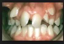 Robison Orthodontics Mesa Arizona Orthodontist FAQ Do I Need Braces, Let's Take A Look