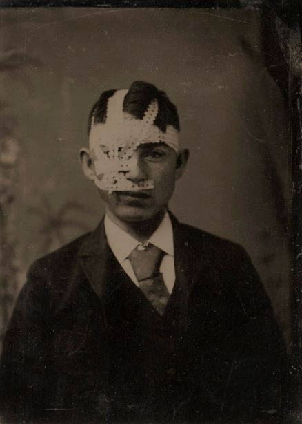 ca. 1880, young man with bandaged head