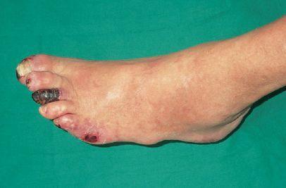 Richtlijnen behandeling van voeten : Gangreen