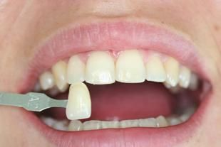 Conoscete le faccette estetiche da applicare sui #denti?