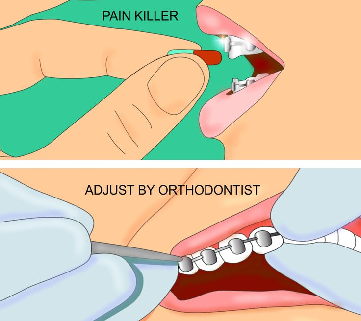 How to Decrease Orthodontic Brace Pain - good tips from people who've clearly experienced braces - but it's so worth it!