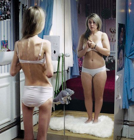 Anorexia Awareness Campaign