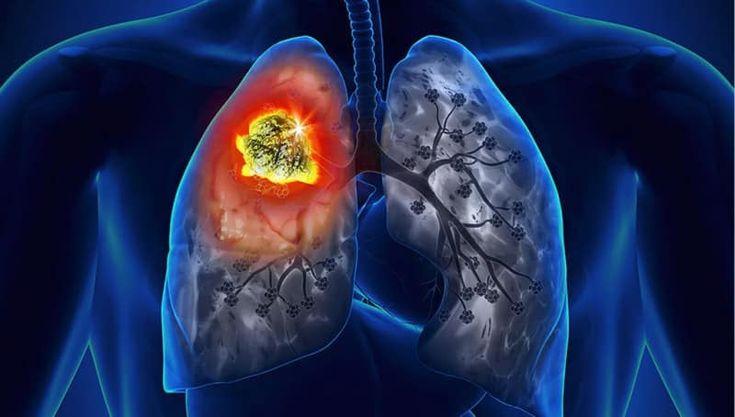 Las vitaminas comunes podrían aumentar el riesgo de cáncer de pulmón | Grandes Medios  ||  Las vitaminas comunes podrían aumentar el riesgo de cáncer de pulmón en especial a los hombres fumadores, ya que el riesgo de cáncer es casi el doble. https://www.grandesmedios.com/vitaminas-riesgo-cancer-de-pulmon/?utm_campaign=crowdfire&utm_content=crowdfire&utm_medium=social&utm_source=pinterest