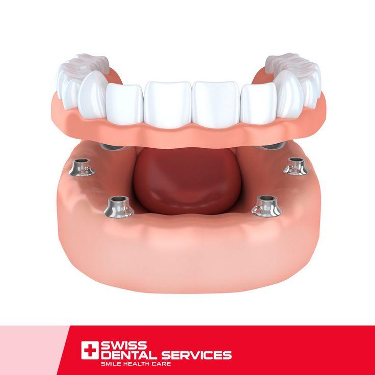 Avec la procédure All-on-4, vous pouvez à nouveau sourire et manger sans gêne ! Cette technique permet de résoudre même les situations les plus extrêmes, puisqu'elle est appliquée chez des patients souffrant d'atrophie maxillaire sévère et dont la dentition n'existe plus, sans recours aux greffes osseuses. www.swissdentalservices.com/fr