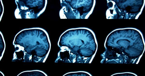 Researchers Have Discovered a New Possible Cause of Schizophrenia