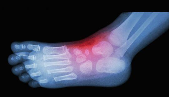 Foot Sprains/Lisfranc Injury