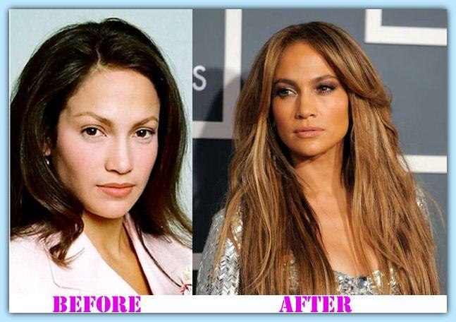 jennifer lopez plastic surgery before and after Jennifer Lopez Plastic Surgery #JenniferLopezplasticsurgery #JenniferLopez #houshow