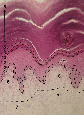 SKIN OF THE FINGER Stained with haematoxylin and eosin 1 - basal layer of epidermis  2 - prickle cell layer (stratum spinosum) of epidermis  3 - granular layer of epidermis  4 - lucidar layer of epidermis  5 - cornified layer of epidermis  6 - papillary layer of dermis  7 - reticular layer of dermis