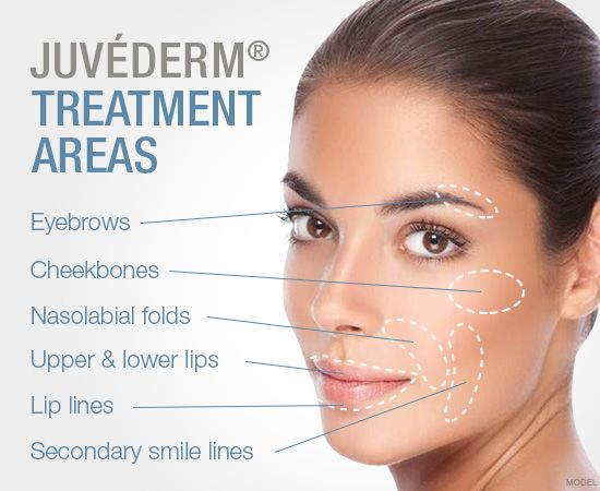 Everyone Will Notice. No One Will Know. Lift, Smooth, or Plump Your Way To Natural-Looking Results That Last - Juvederm Hyaluronic acid filler such as Juvederm, Juvederm Voluma, Restylane & Belotero is comprised of Hyaluronic Acid, a type of sugar naturally found in the skin. It has a smooth gel consistency making it a very natural replacement for soft tissue and volume loss which occurs when we age.