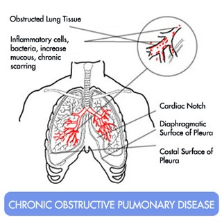 7 best asthma and your lungs images on pinterest lungs health and natural cure for copd how to cure chronic obstructive pulmonary disease naturally ccuart Gallery