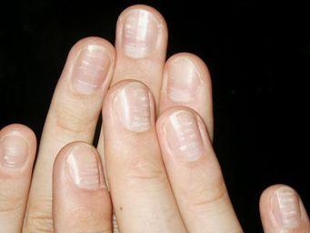 Bedeuten weiße Flecken auf den Fingernägeln einen Kalziummangel? | eatsmarter.de