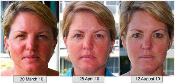 Before & after results of using the Galvanic Spa from Nu Skin. You can't argue with this!