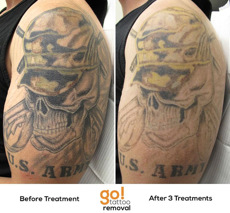 After 3 laser tattoo removal treatments we 39 ve got for How to fade a tattoo