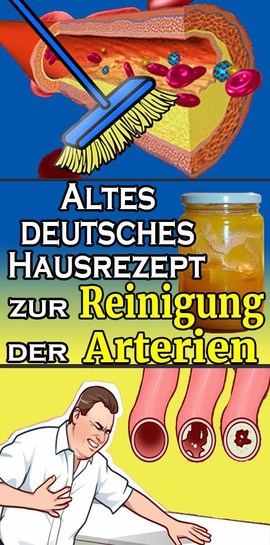 Altdeutsches Hausrezept zur Reinigung der Arterien   – Gesundheit und fitness
