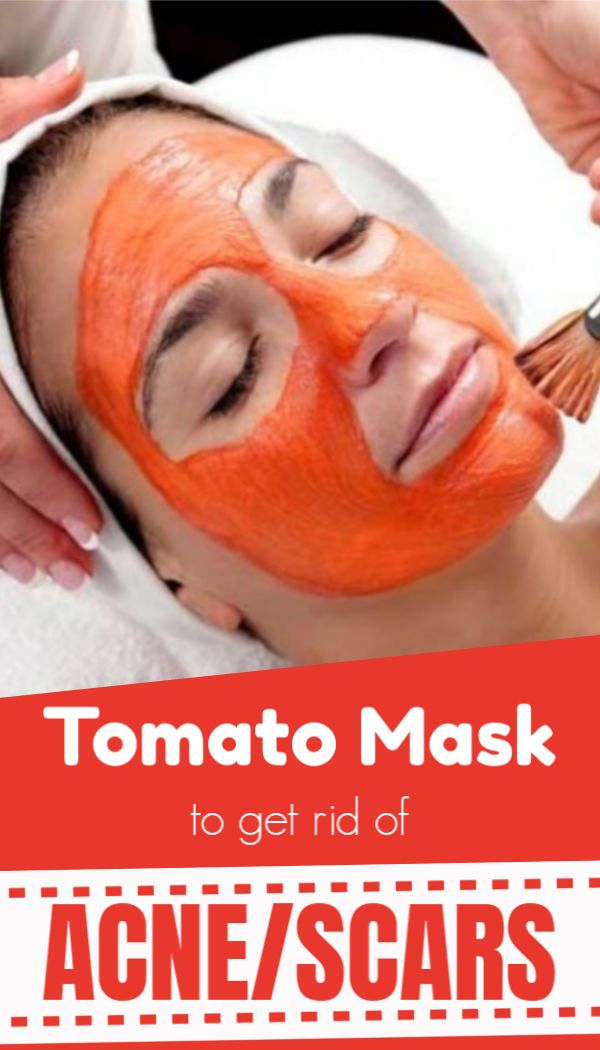 Miracles of Tomato – Removes acne, pimple, scars and gives a smooth glowing skin