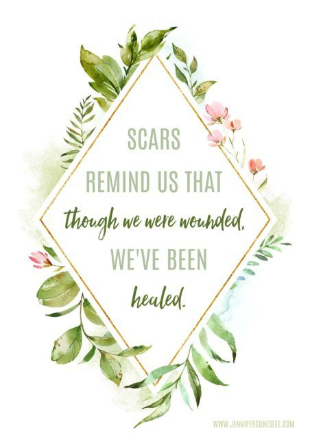Scars remind us that, though we were wounded, we've been healed.